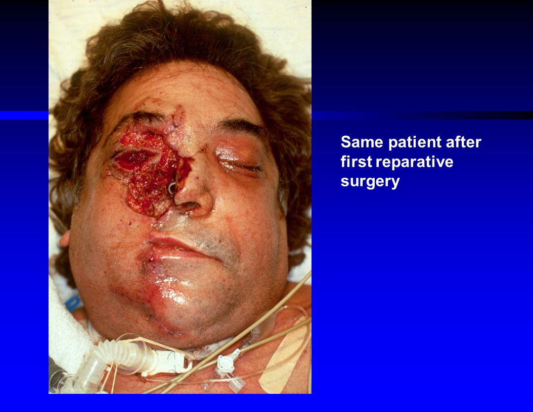 Facial Trauma Ppt Video Online Download