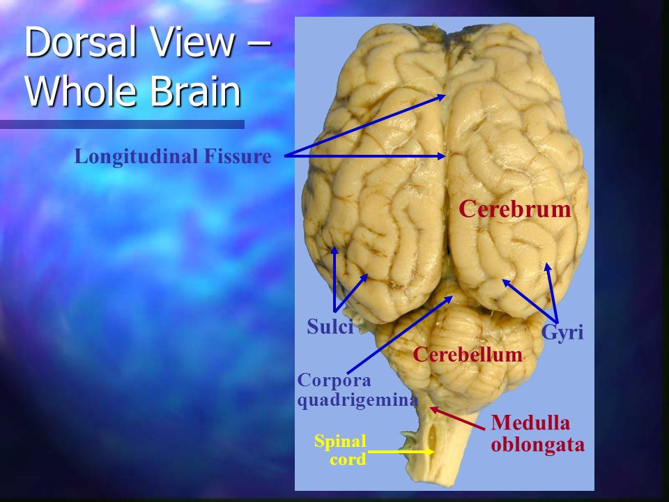 Dorsal View – Whole Brain