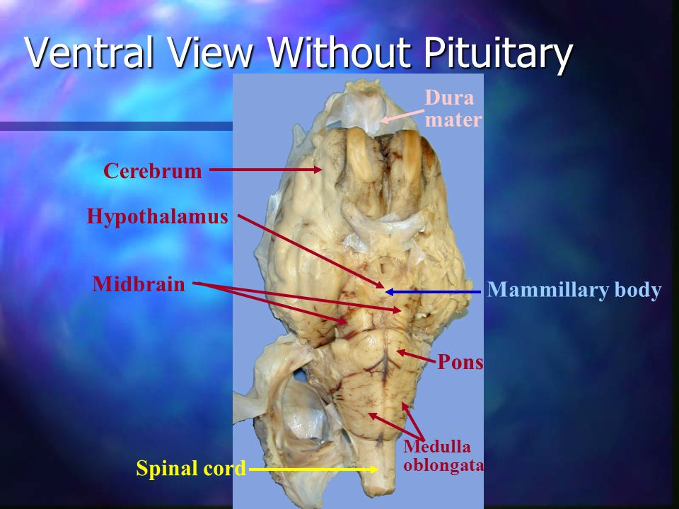 Ventral View Without Pituitary