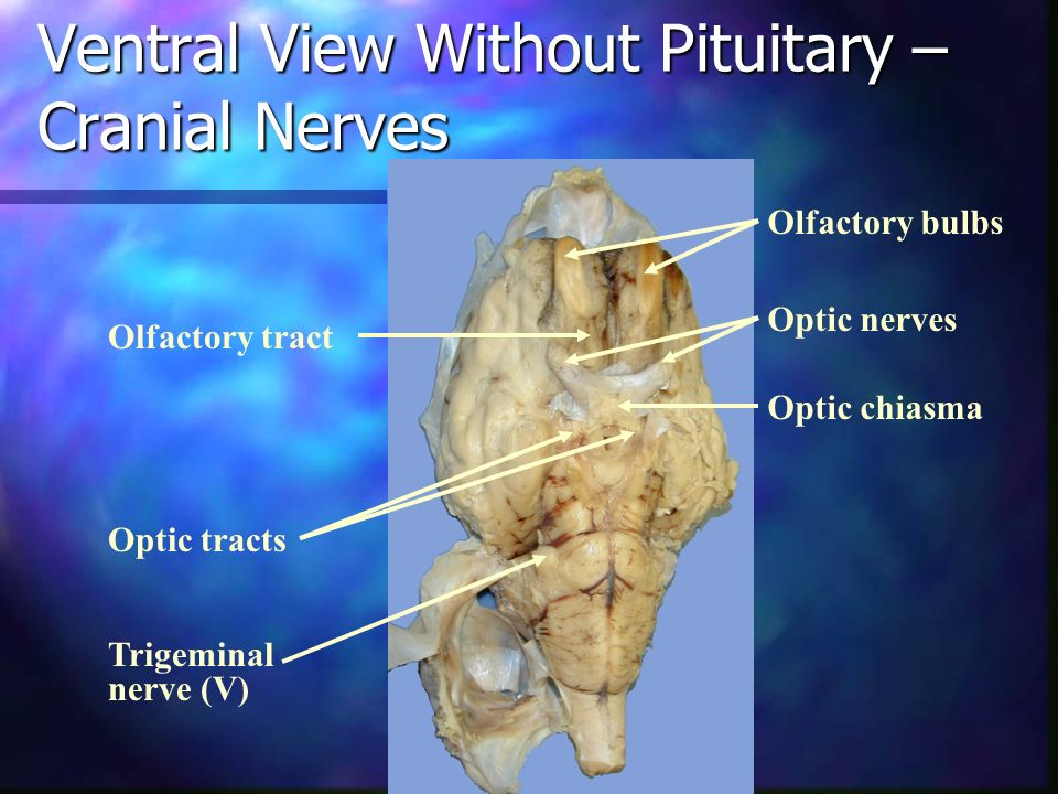 Ventral View Without Pituitary – Cranial Nerves