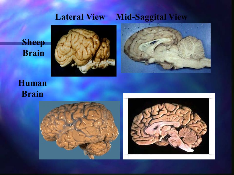 Lateral View Mid-Saggital View Sheep Brain Human Brain