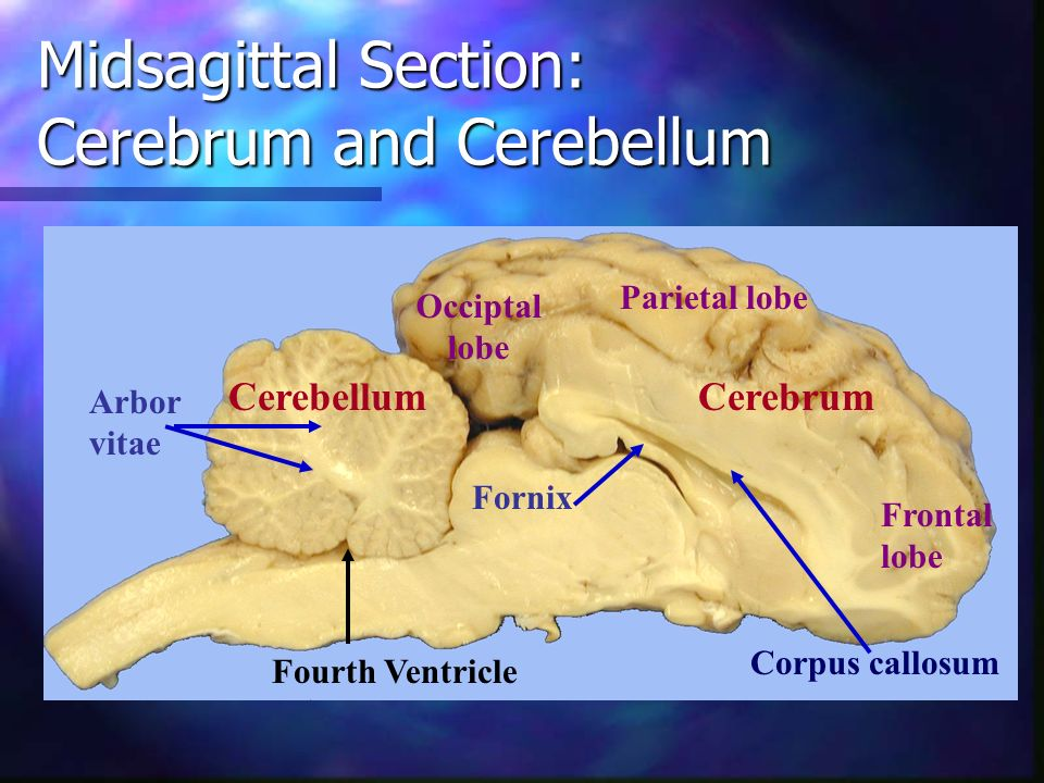 Midsagittal Section: Cerebrum and Cerebellum