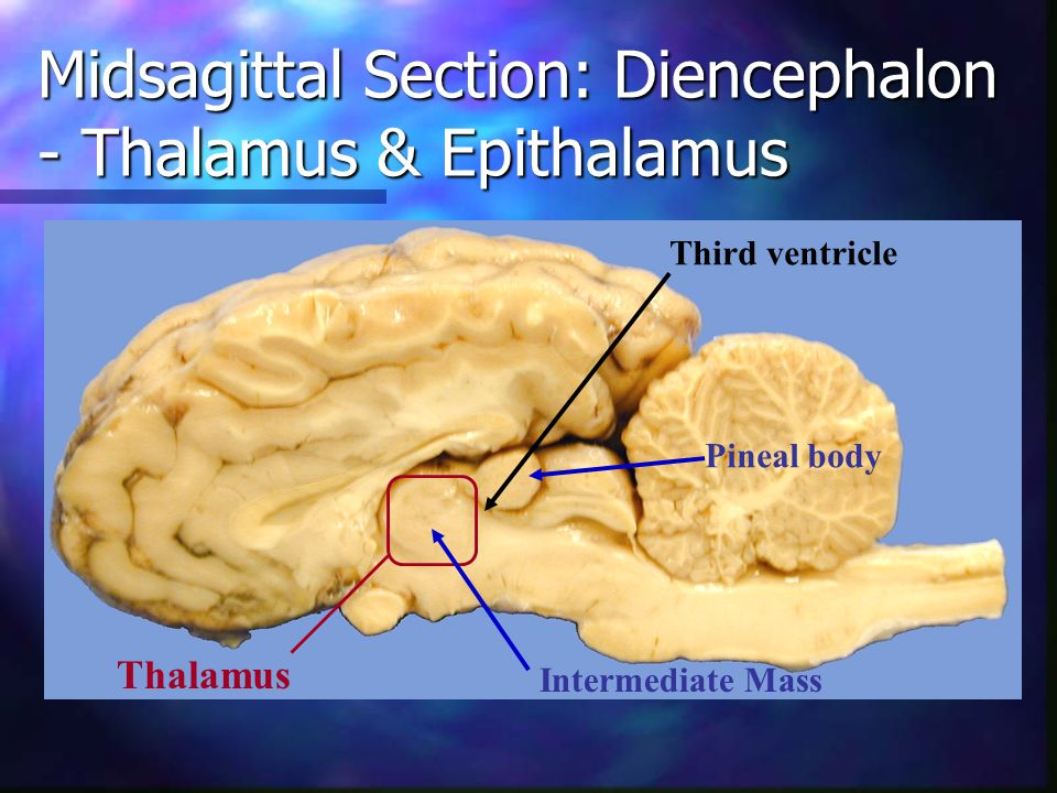Midsagittal Section: Diencephalon - Thalamus & Epithalamus