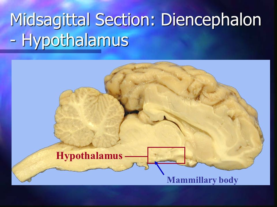 Midsagittal Section: Diencephalon - Hypothalamus