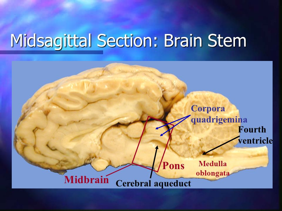 Midsagittal Section: Brain Stem