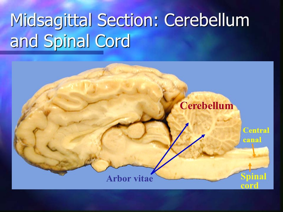 Midsagittal Section: Cerebellum and Spinal Cord