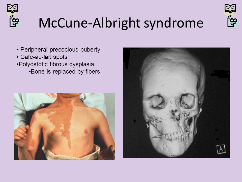 mc cune girls As some of us suspected, she turned out to have the albright-mccune-sternberg  syndrome although only 3 years old, this girl may also prove to have unilateral.