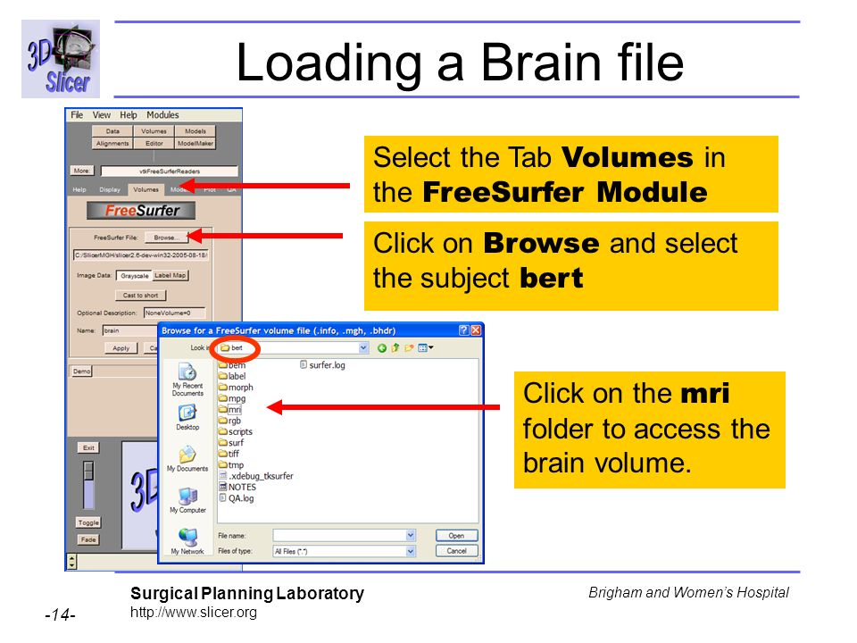 Loading a Brain file Select the Tab Volumes in the FreeSurfer Module