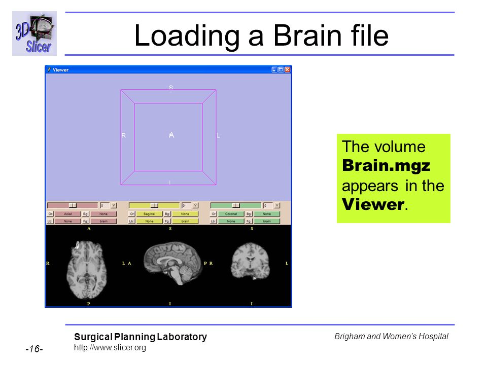 Loading a Brain file The volume Brain.mgz appears in the Viewer.