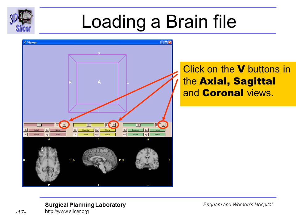 Loading a Brain file Click on the V buttons in the Axial, Sagittal and Coronal views.