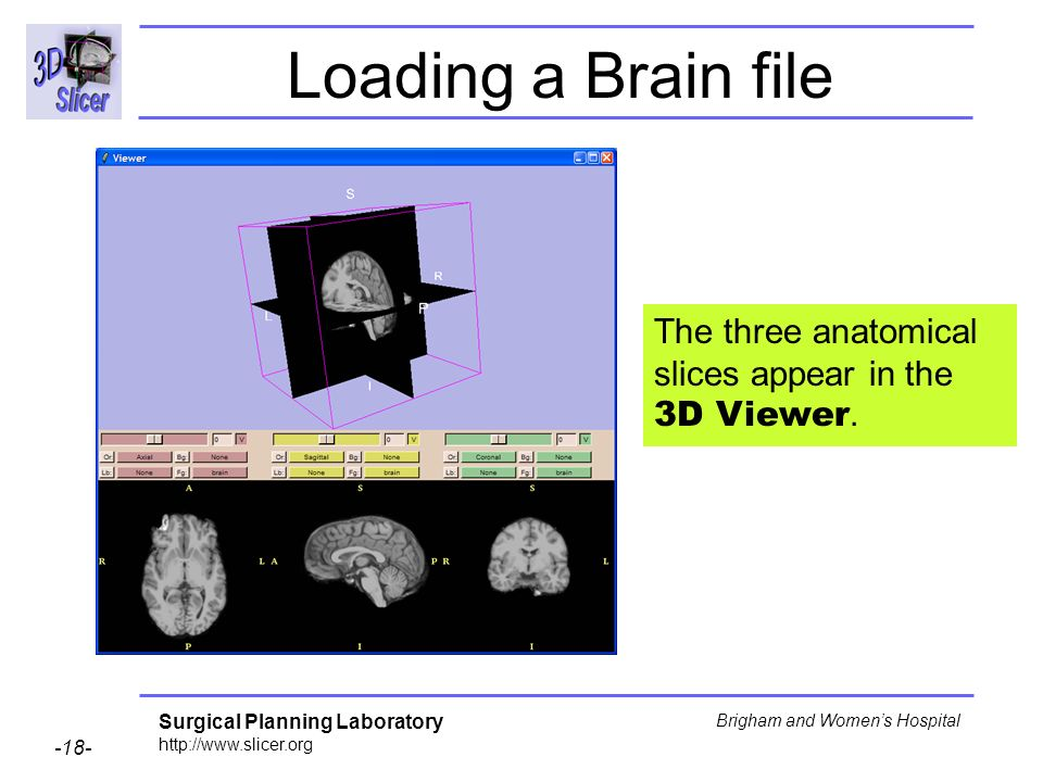 Loading a Brain file The three anatomical slices appear in the 3D Viewer.