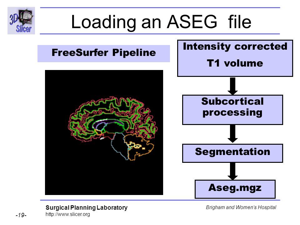 Subcortical processing