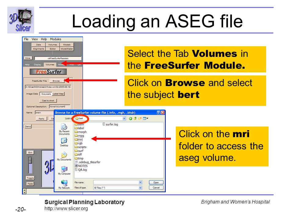 Loading an ASEG file Select the Tab Volumes in the FreeSurfer Module.