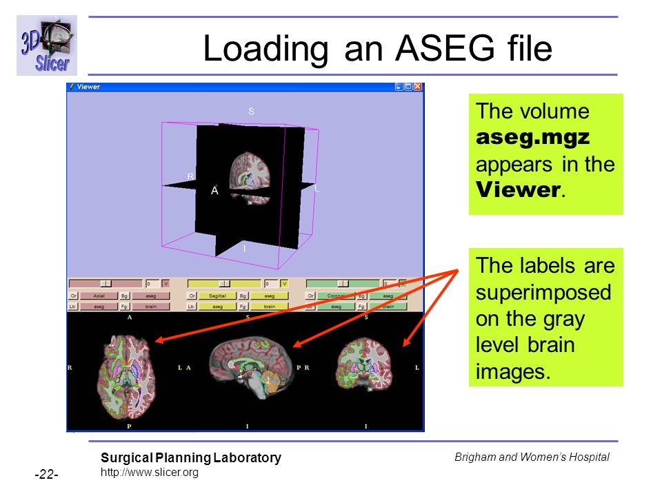 Loading an ASEG file The volume aseg.mgz appears in the Viewer.