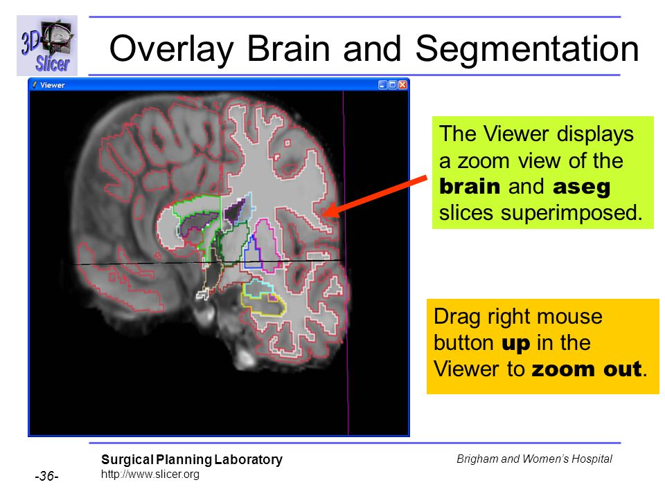Overlay Brain and Segmentation