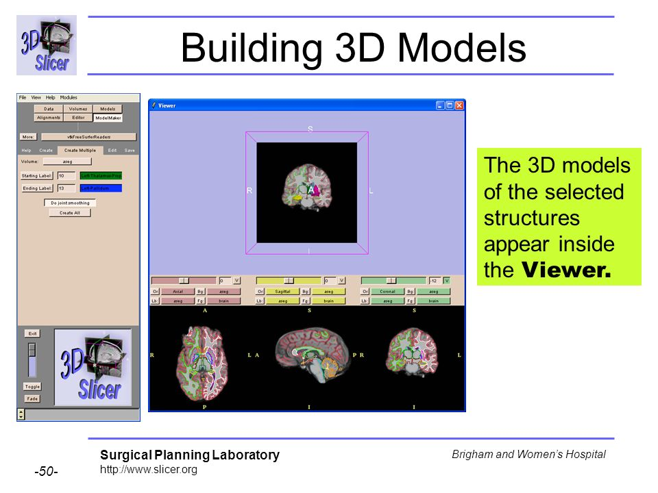 Building 3D Models The 3D models of the selected structures appear inside the Viewer.