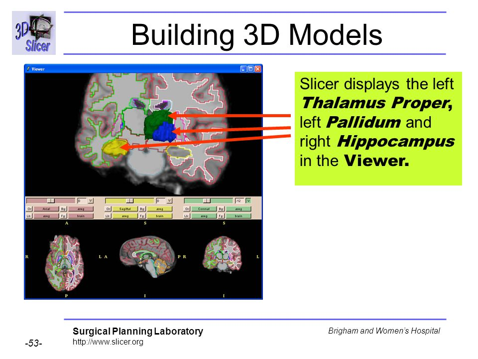 Building 3D Models Slicer displays the left Thalamus Proper, left Pallidum and right Hippocampus in the Viewer.
