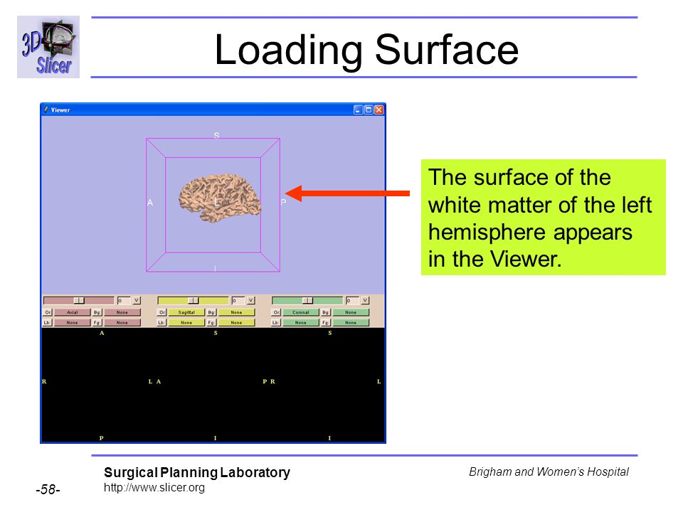 Loading Surface The surface of the white matter of the left hemisphere appears in the Viewer.