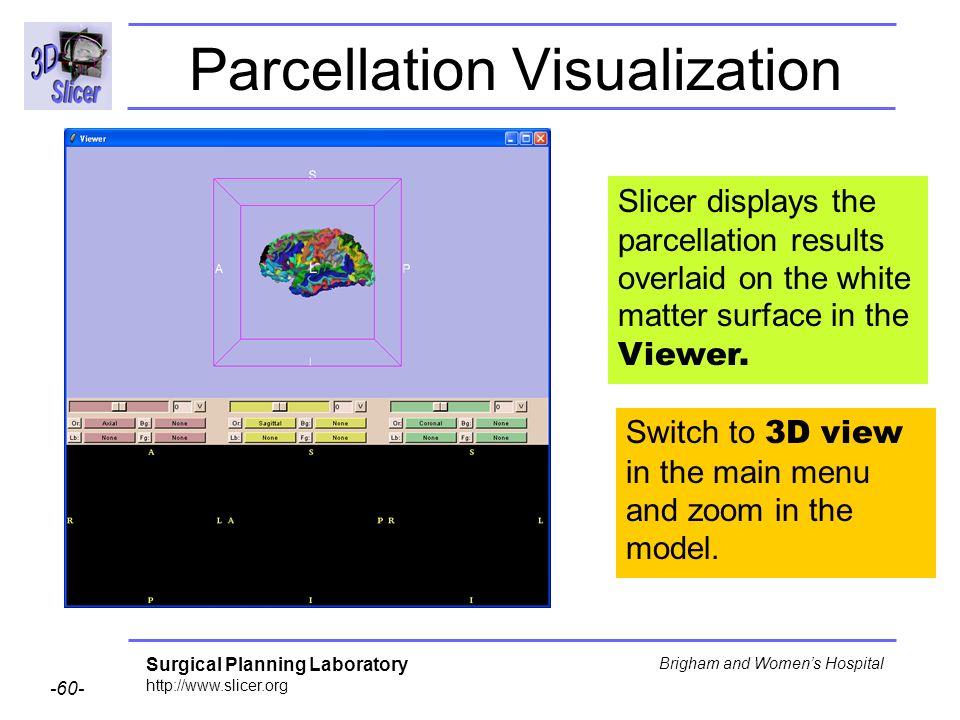 Parcellation Visualization