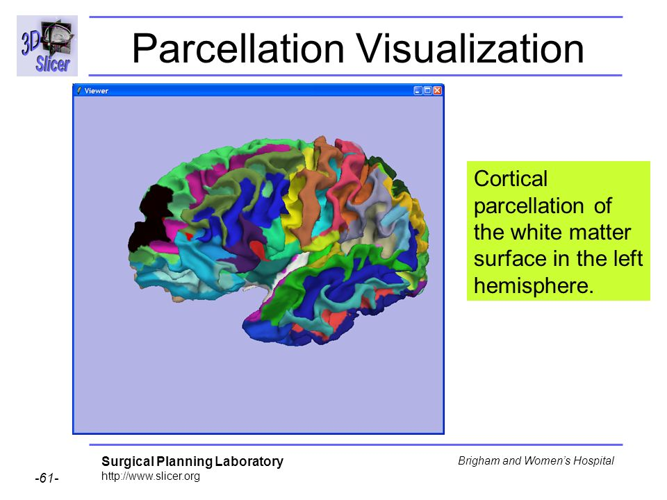 Parcellation Visualization