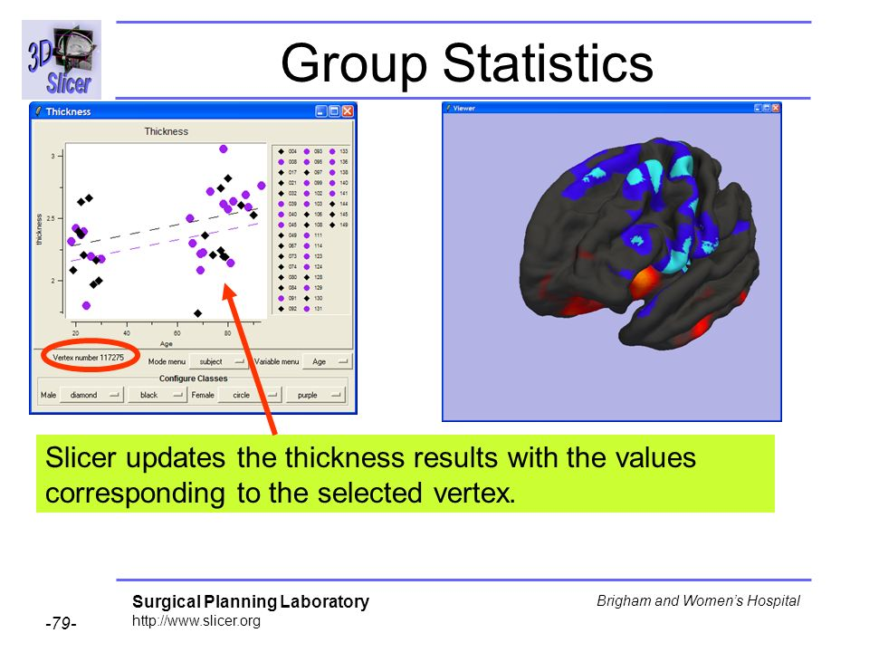 Group Statistics Slicer updates the thickness results with the values corresponding to the selected vertex.