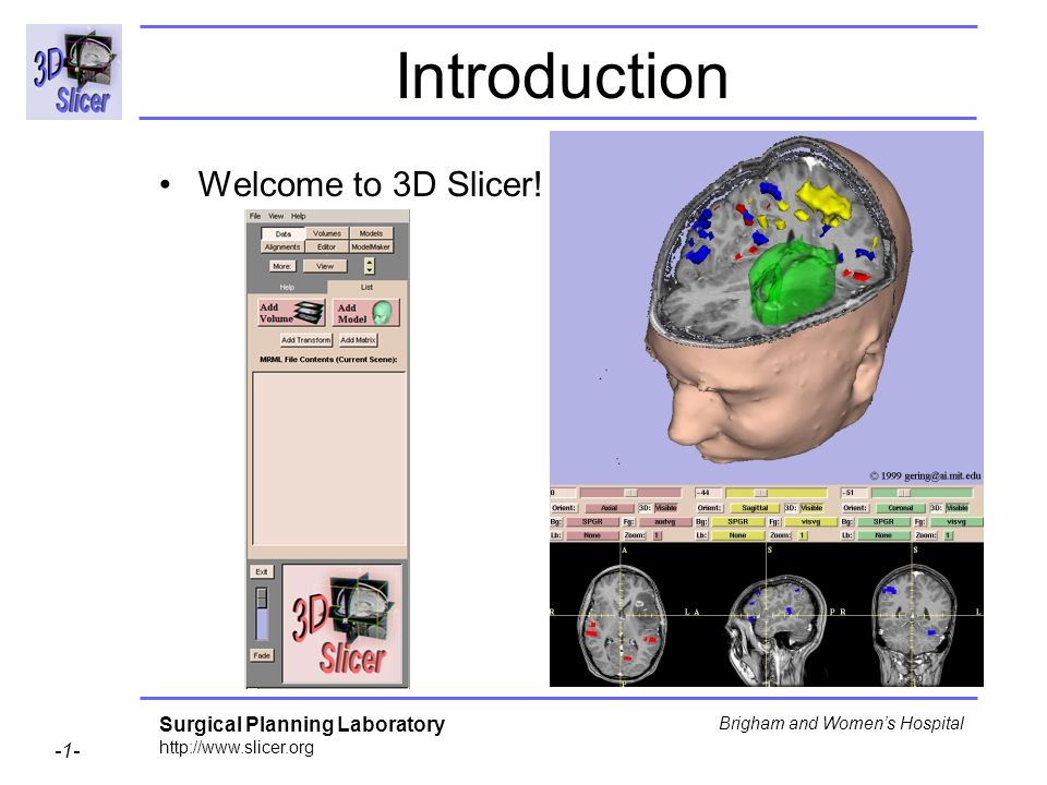 Introduction Welcome to 3D Slicer!