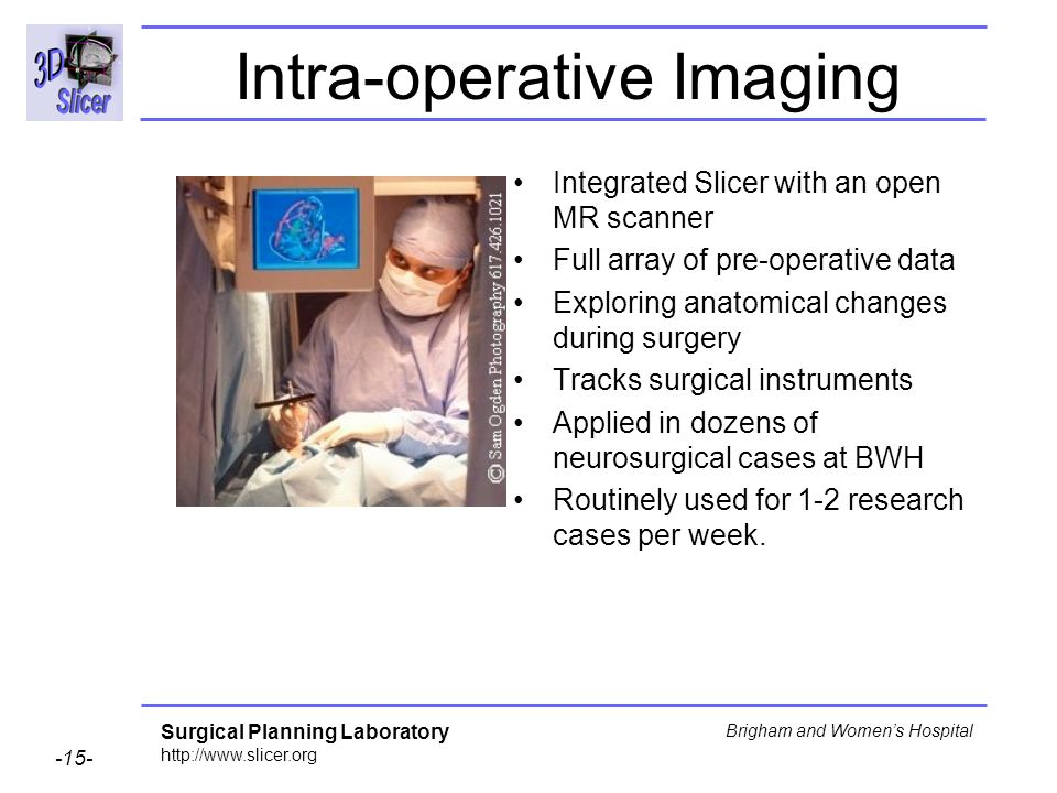 Intra-operative Imaging
