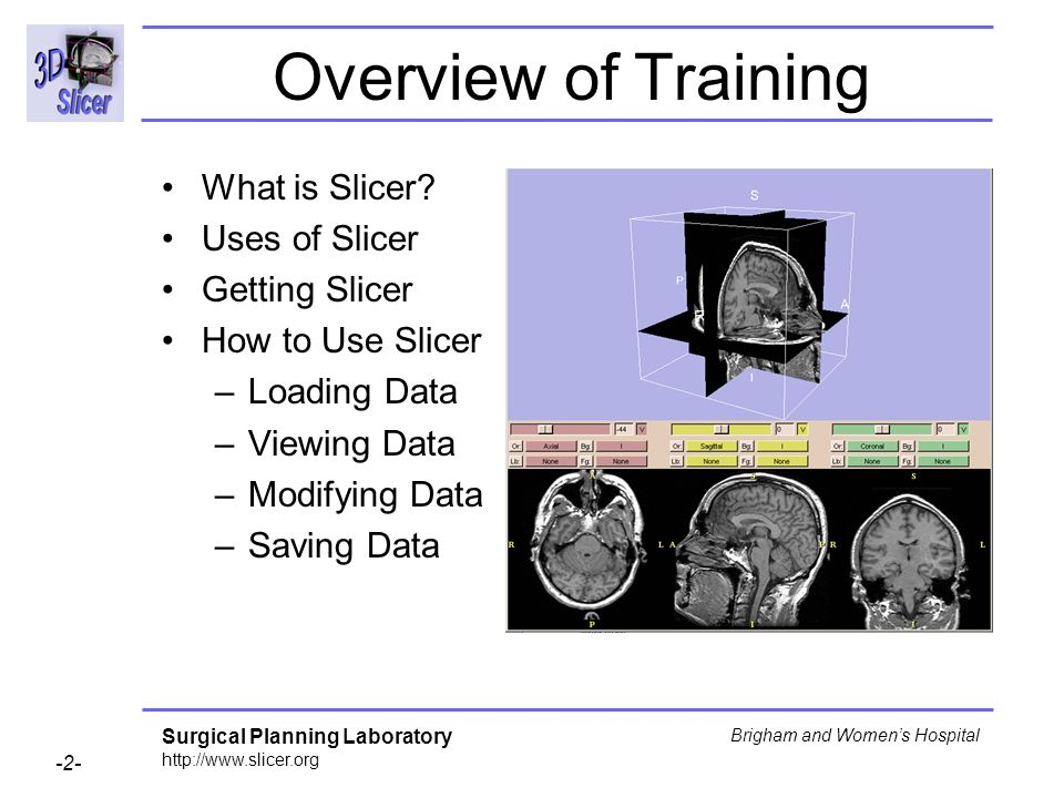 Overview of Training What is Slicer Uses of Slicer Getting Slicer