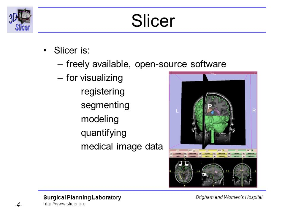 Slicer Slicer is: freely available, open-source software