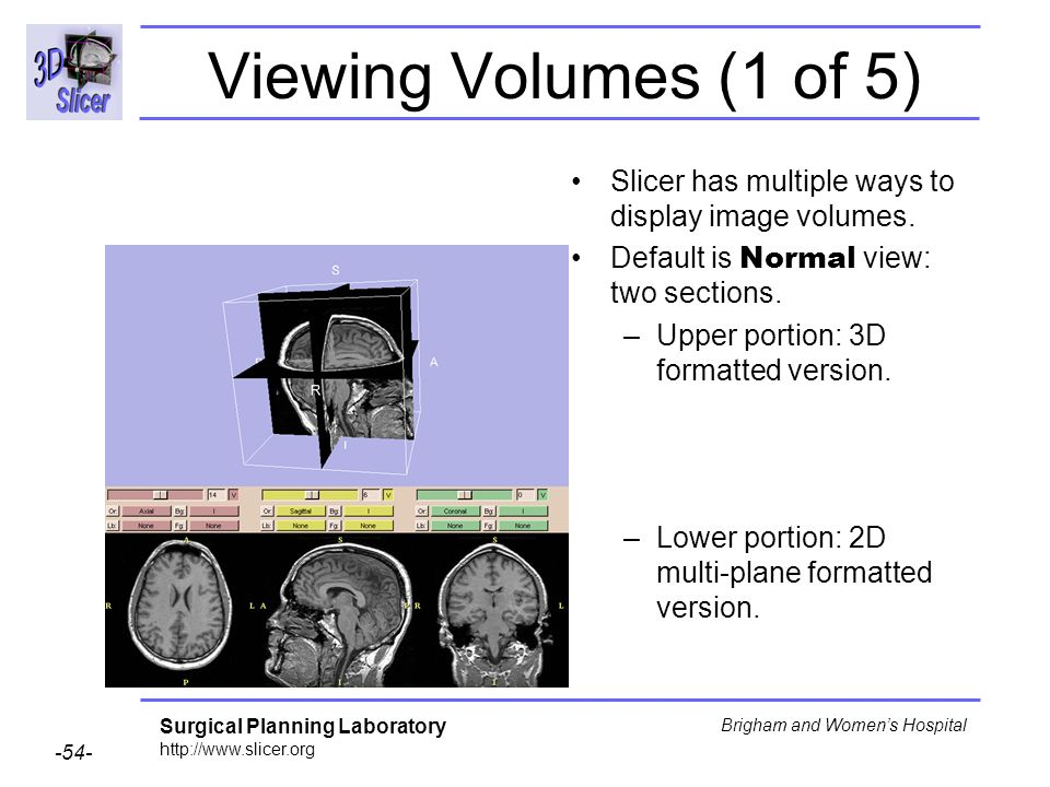 Viewing Volumes (1 of 5) Slicer has multiple ways to display image volumes. Default is Normal view: two sections.
