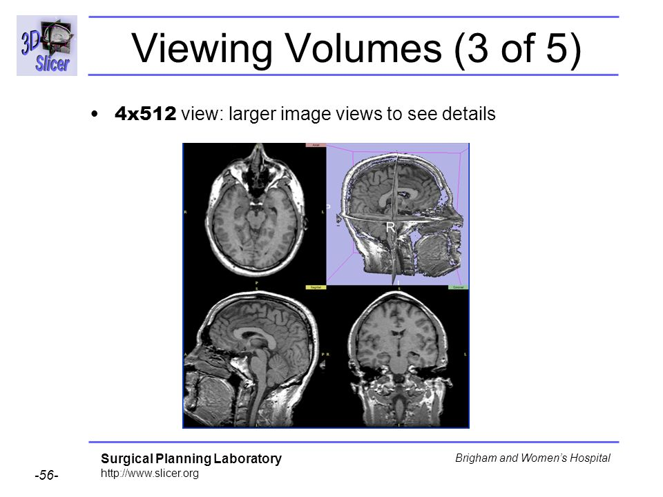 Viewing Volumes (3 of 5) 4x512 view: larger image views to see details