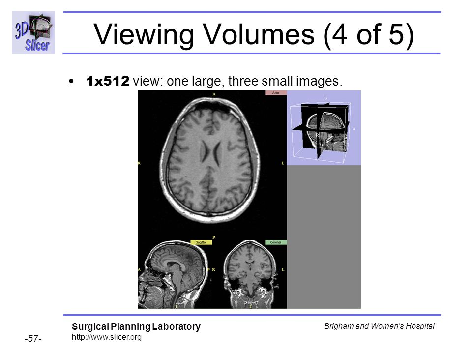 Viewing Volumes (4 of 5) 1x512 view: one large, three small images.