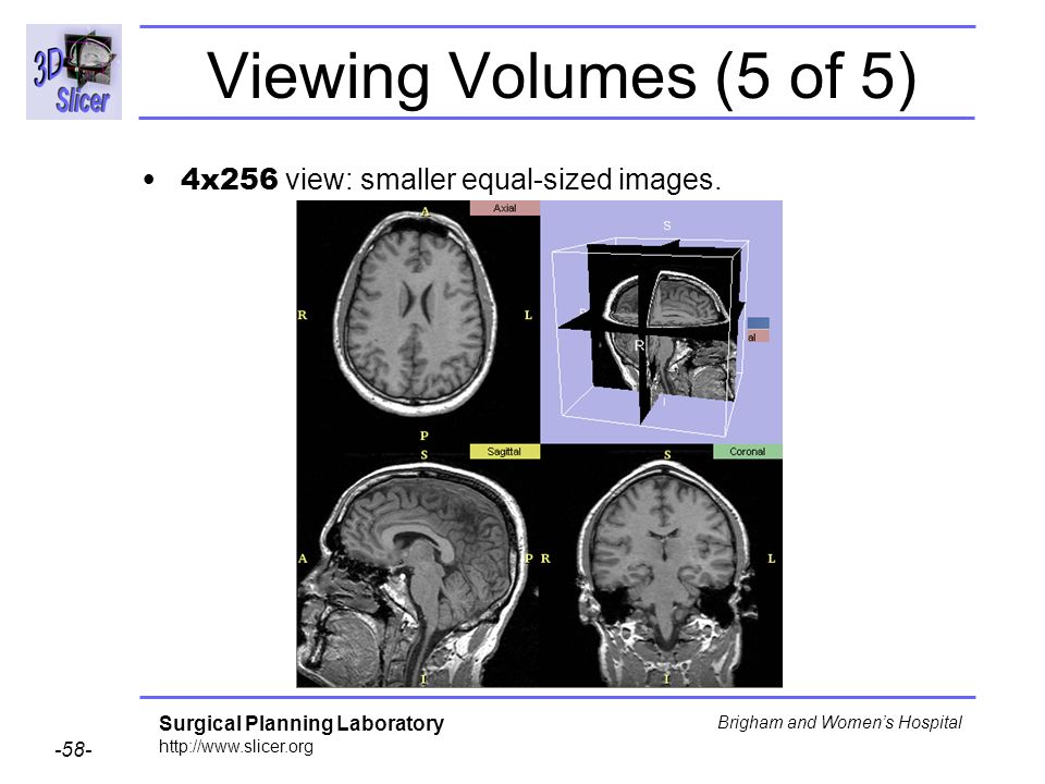 Viewing Volumes (5 of 5) 4x256 view: smaller equal-sized images.