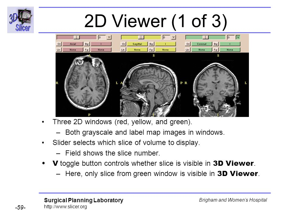 2D Viewer (1 of 3) Three 2D windows (red, yellow, and green).