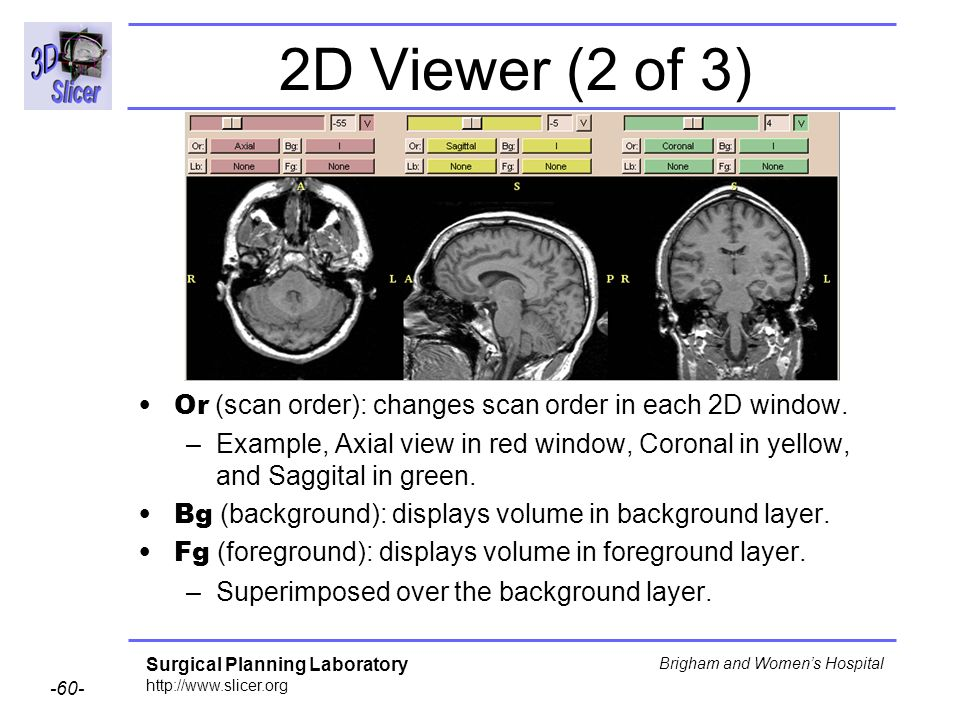 2D Viewer (2 of 3) Or (scan order): changes scan order in each 2D window.