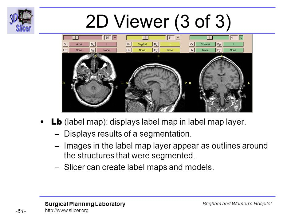 2D Viewer (3 of 3) Lb (label map): displays label map in label map layer. Displays results of a segmentation.