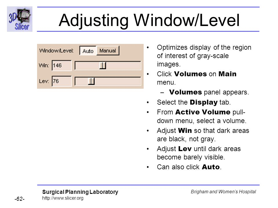 Adjusting Window/Level
