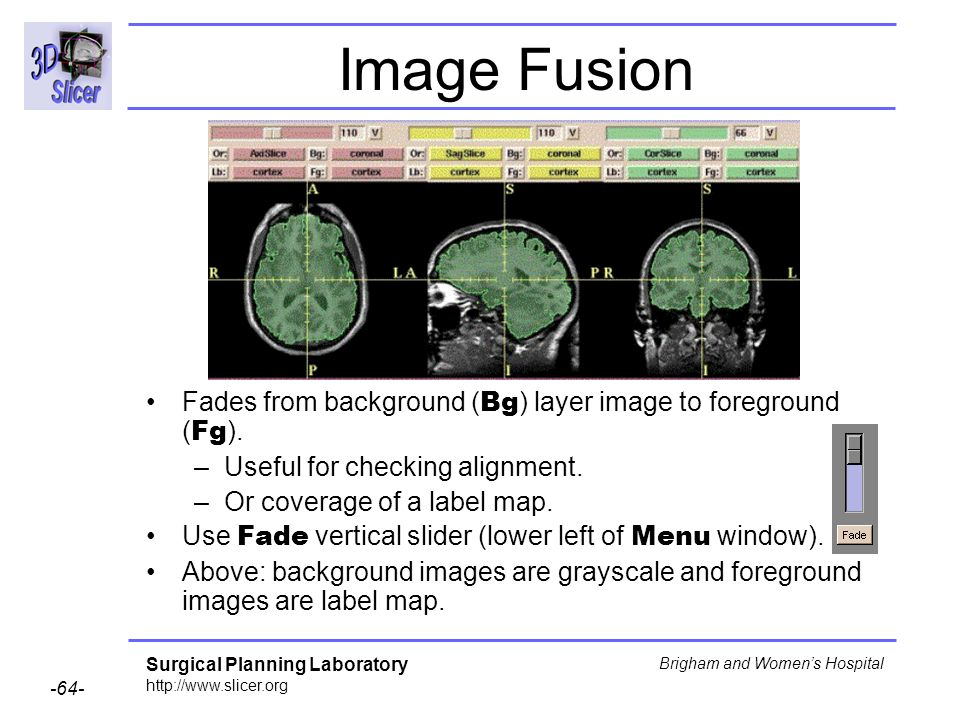 Image Fusion Fades from background (Bg) layer image to foreground (Fg). Useful for checking alignment.