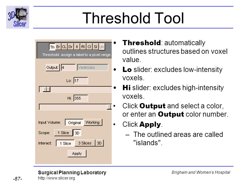 Threshold Tool Threshold: automatically outlines structures based on voxel value. Lo slider: excludes low-intensity voxels.