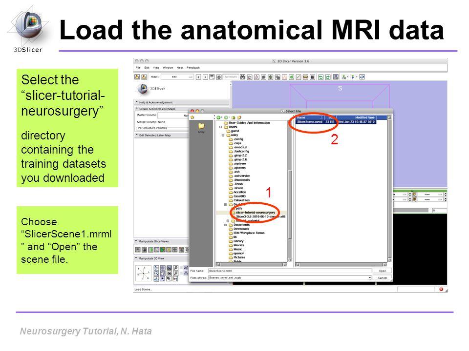 Load the anatomical MRI data