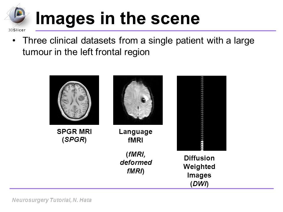 Diffusion Weighted Images (DWI)