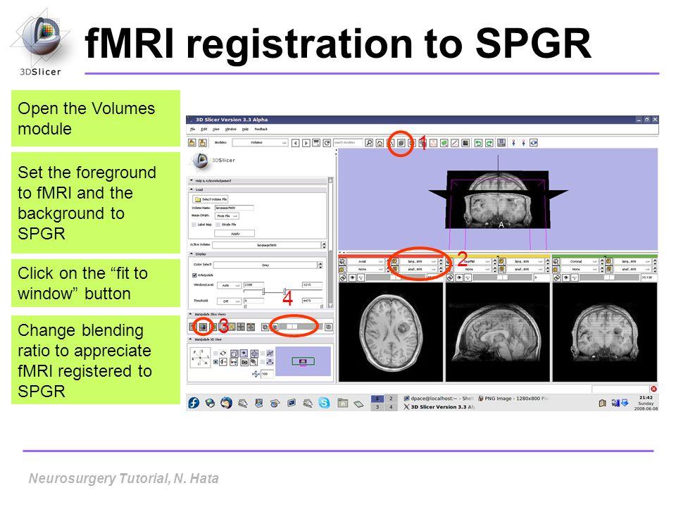 fMRI registration to SPGR
