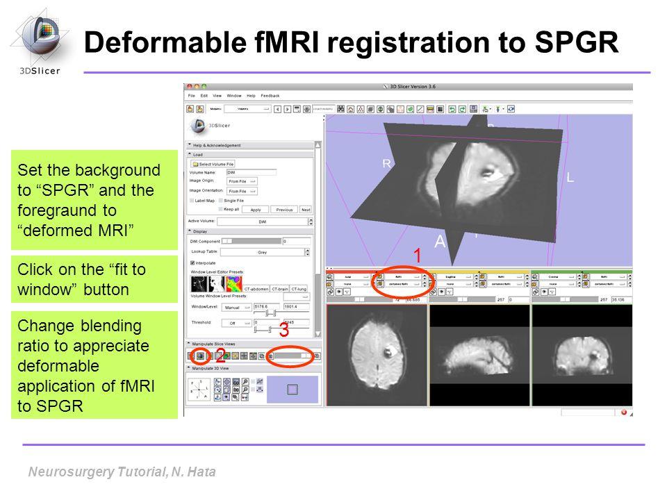 Deformable fMRI registration to SPGR