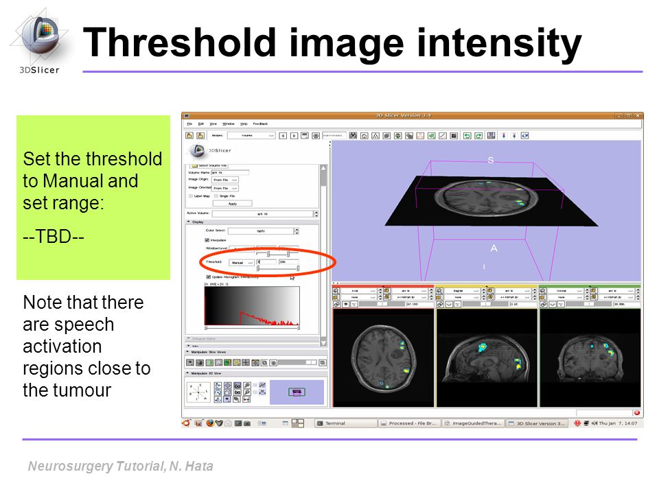 Threshold image intensity