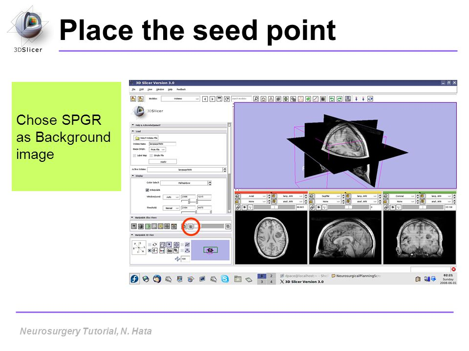 Place the seed point Chose SPGR as Background image