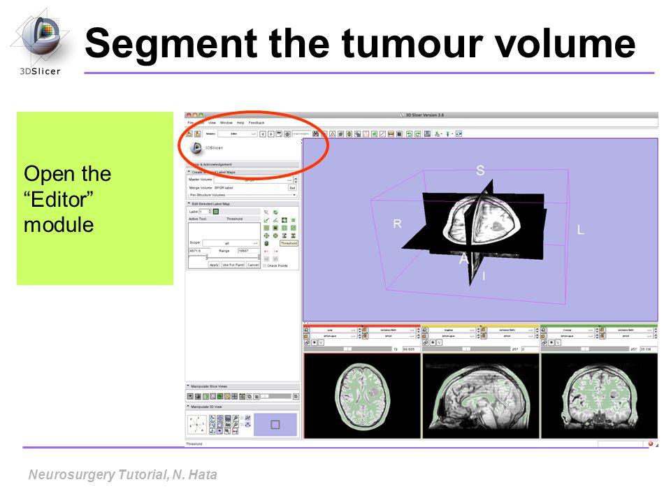 Segment the tumour volume
