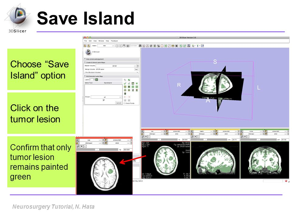 Save Island Choose Save Island option Click on the tumor lesion