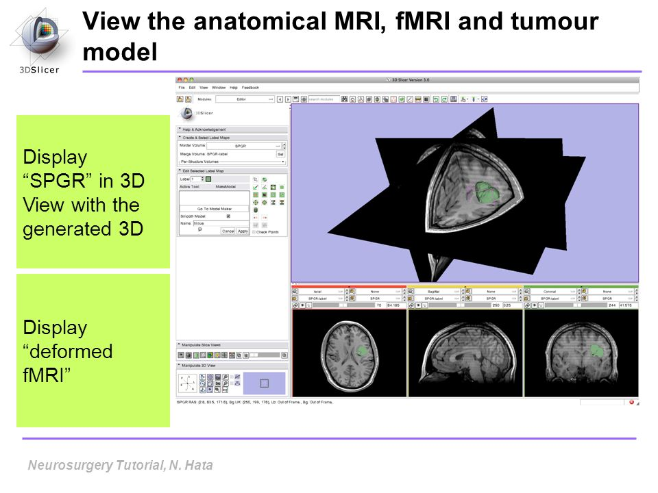 View the anatomical MRI, fMRI and tumour model