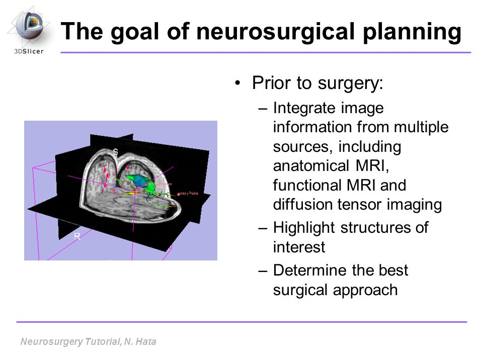 The goal of neurosurgical planning