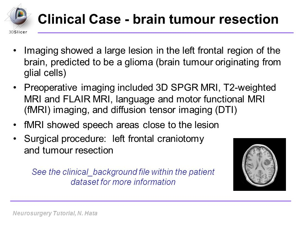 Clinical Case - brain tumour resection